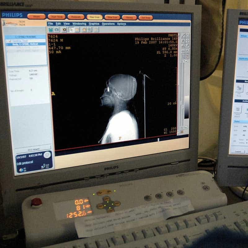 mobile CT scanner 16 slide system