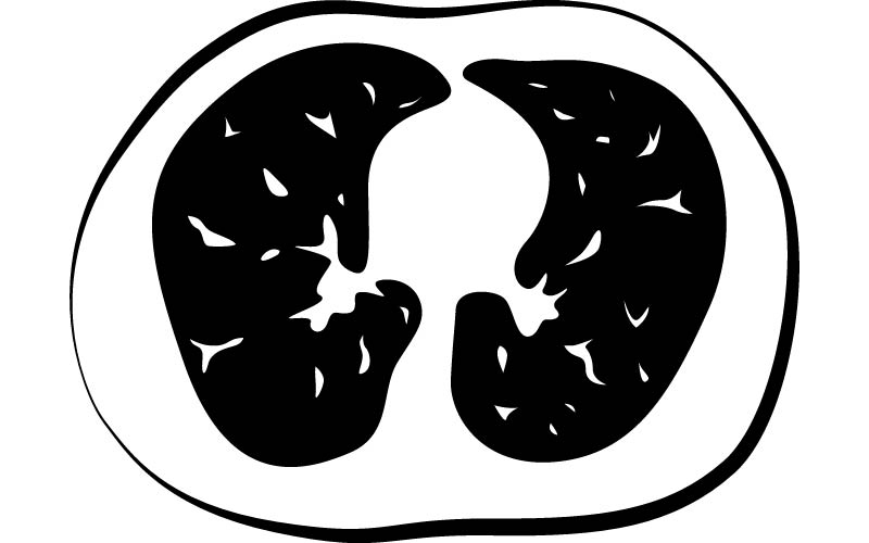 CT scan of healthy lungs